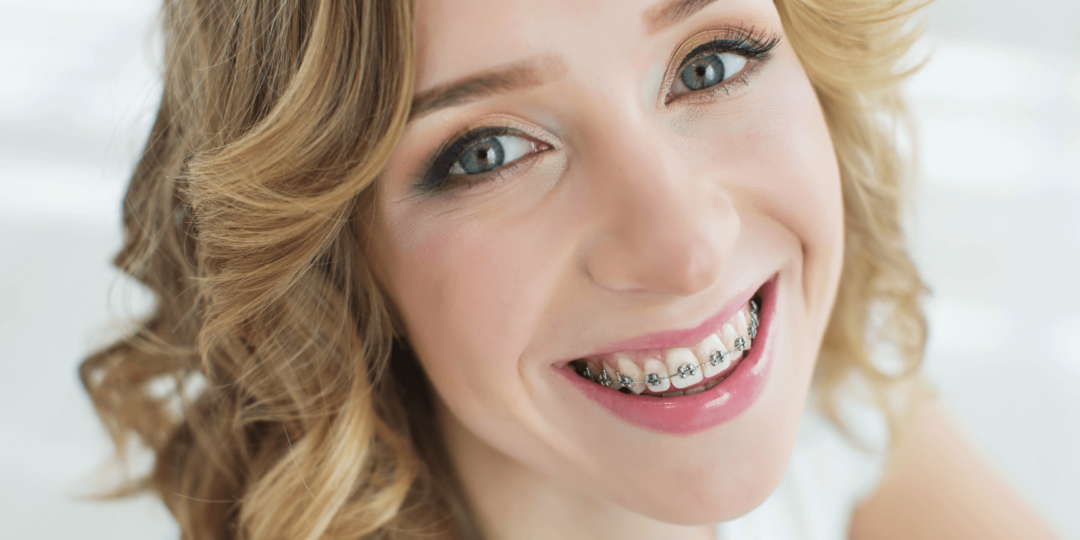 aparate dentare metalice Cluj - OrtoEstetic, dr Julia Morar