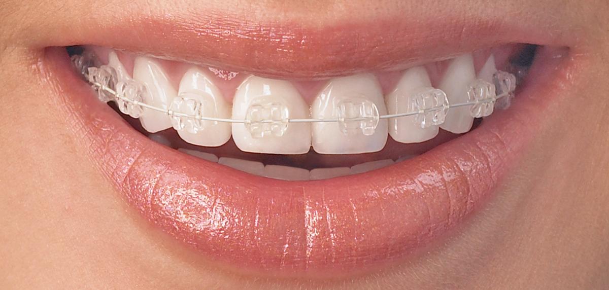 pret aparate dentare safir Cluj