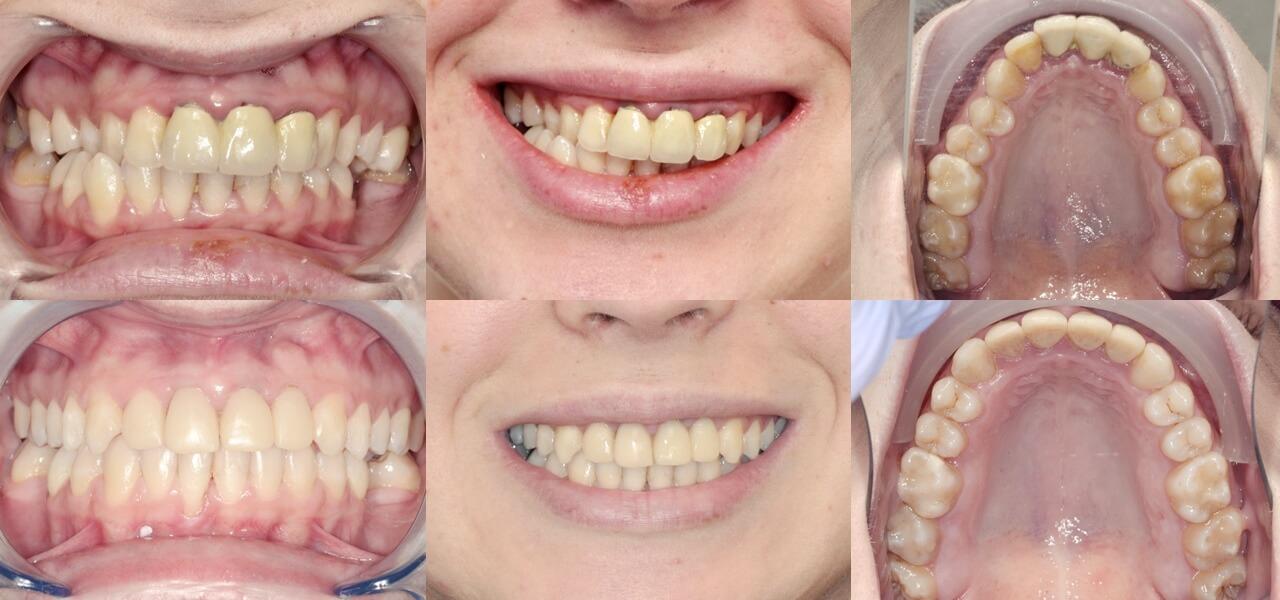 cazuri clinice ortodontie Cluj, OrtoEstetic, dr Julia Morar Kis