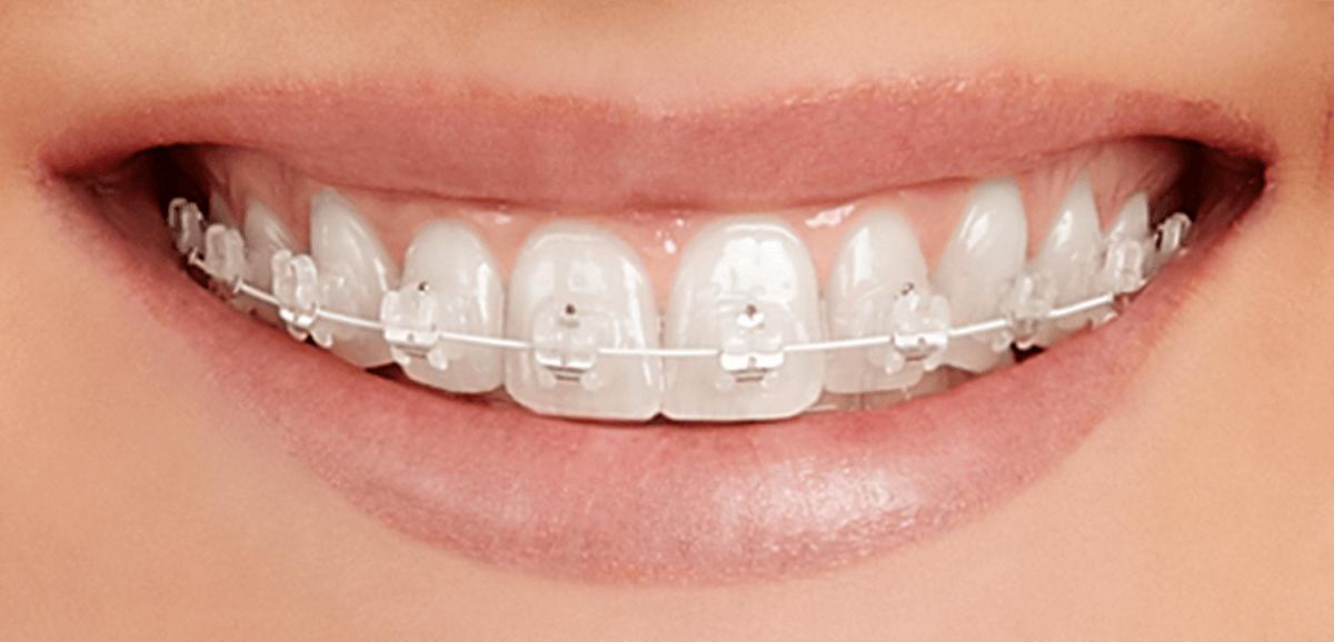 pret aparate ortodontice autoligaturante Cluj