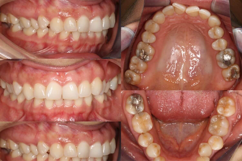 fotografii ortodontice, diagnostic ortodontie OrtoEstetic Cluj-Napoca