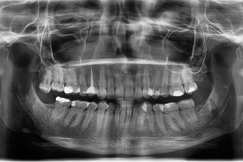 radiografii ortodontice, diagnostic ortodontie, OrtoEstetic Cluj