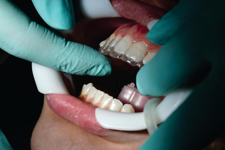 aplicare aparat ortodontic, dr Julia Morar Kis, OrtoEstetic, Cluj
