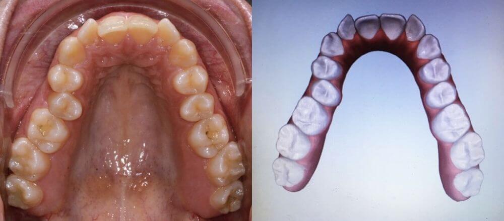 cazuri clinice OrtoEestetic: aparate dentare Invisalign Cluj