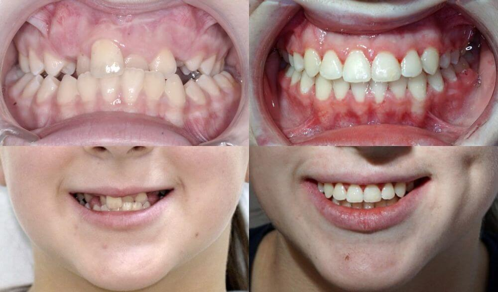 tratament ortodontic cu disjunctor Cluj + aparat fix metalic @ OrtoEstetic