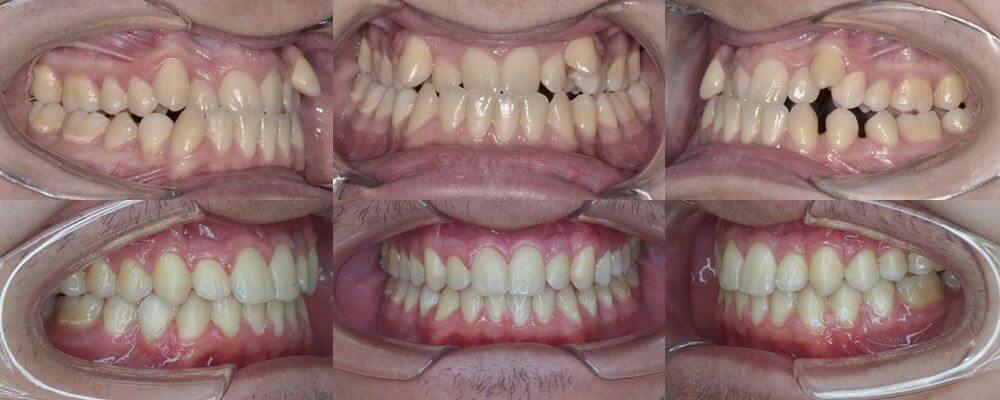 tratament ortodontic multidisciplinar, OrtoEstetic by dr Julia Morar