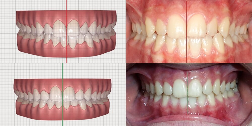 Aparate dentare Invisalign Teen - pentru adolescenti