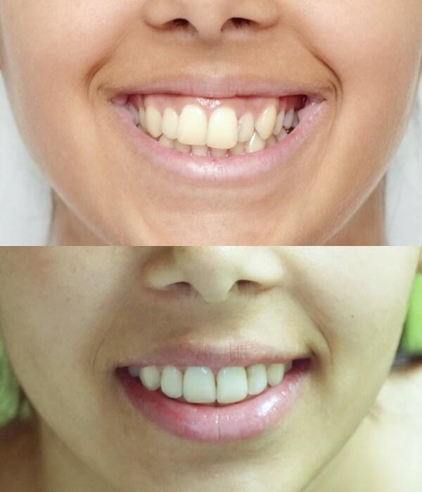 cazuri aparate dentare metalice Cluj @ OrtoEstetic