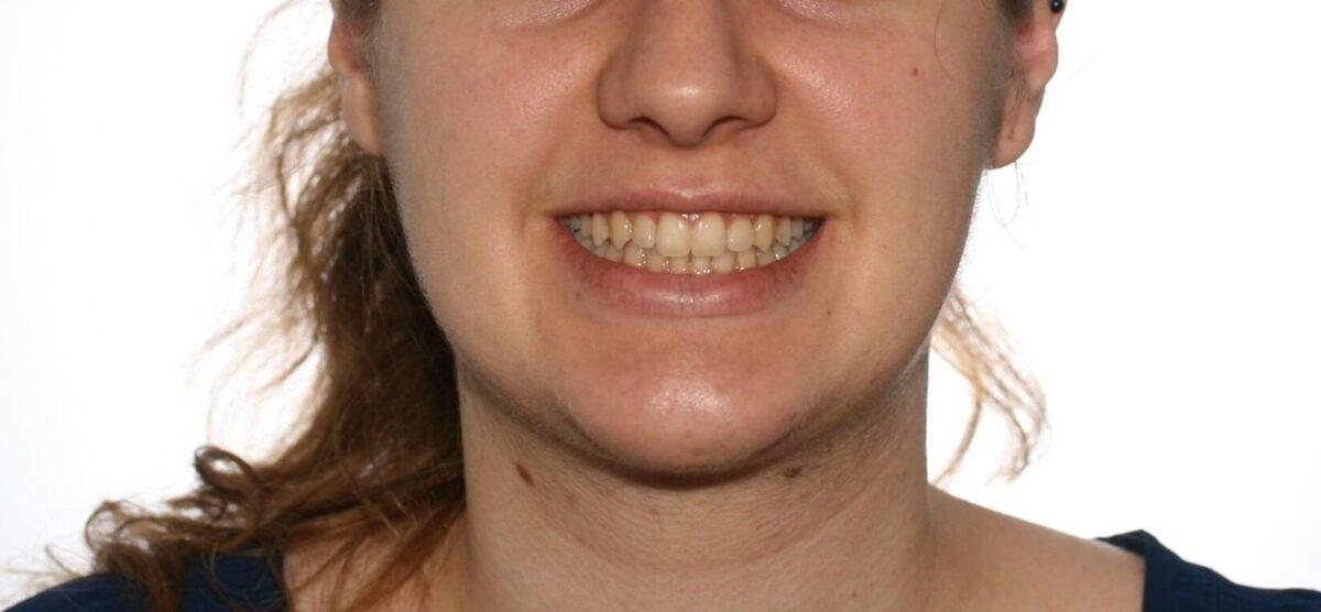 smile2-1200x556.jpg