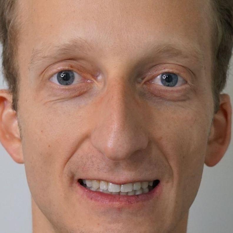 Borbely Geza, pacient OrtoEstitic, ortodontie Cluj